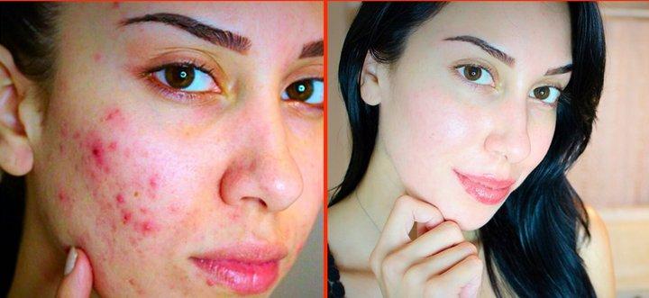 Come utilizzare il bicarbonato di sodio per eliminare l'acne