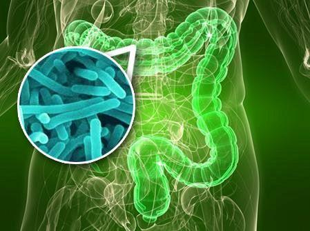 Diverticolite: sintomi, cause e dieta