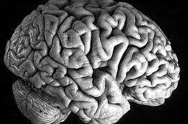 Il cervello degli uomini è diverso da quello delle donne?