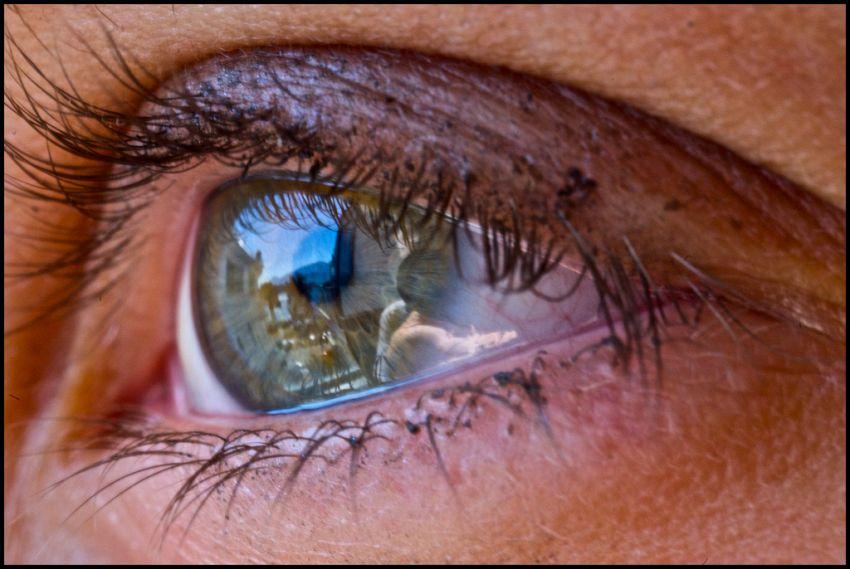 Stress, caffé e alcol: le cause dello spasmo oculare