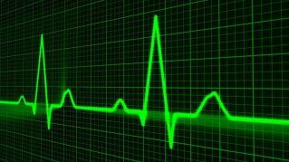 Questioni di cuore: che differenza c'è tra infarto e arresto cardiaco