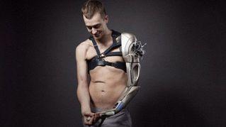 Questo ragazzo ha una protesi tratta direttamente da un videogioco