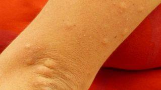 Differenze tra allergie ed intolleranze alimentari: la lista dei test redatta dai medici
