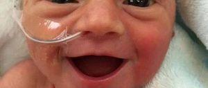 """""""Felice di essere viva"""": la foto della bimba prematura commuove il mondo"""