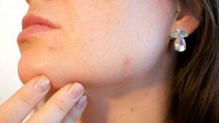 Schiacciarsi i brufoli sul viso può uccidere, attenti al Triangolo della Morte