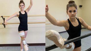 Gabi, ballerina 15enne che danza dopo il cancro (con una gamba in meno)