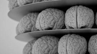 Il cervello maschile è più grande di quello femminile, lo dice la scienza