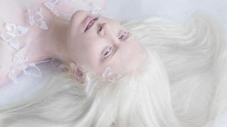 L'ipnotizzante bellezza albina: il loro fascino fiabesco in queste foto