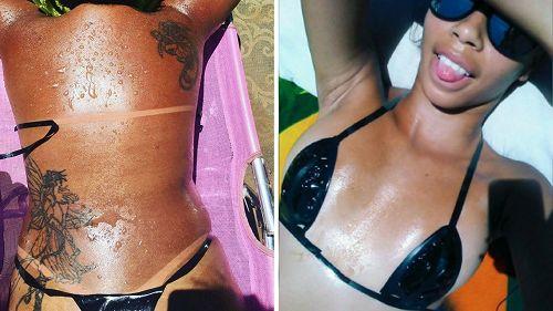 Marquinha: la moda di abbronzarsi con il nastro adesivo