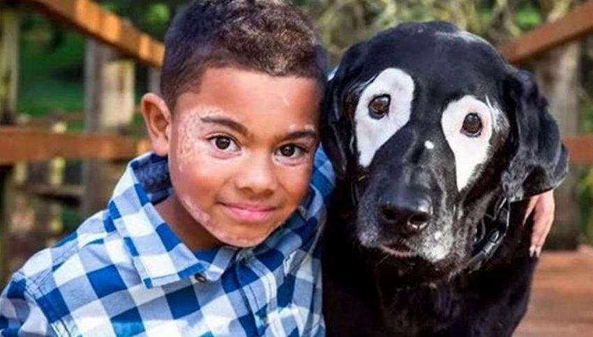 Il bambino di 8 anni e il suo cane con la stessa malattia