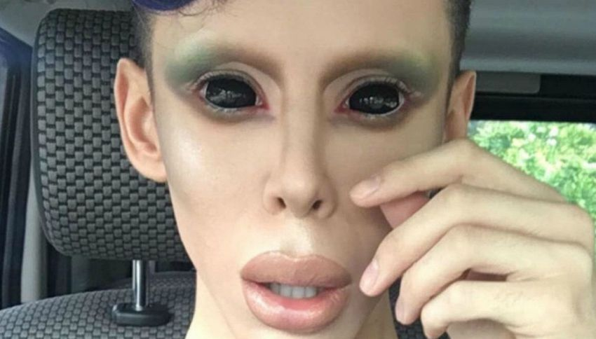 Vinny Ohh: 110 operazioni per assomigliare ad un alieno