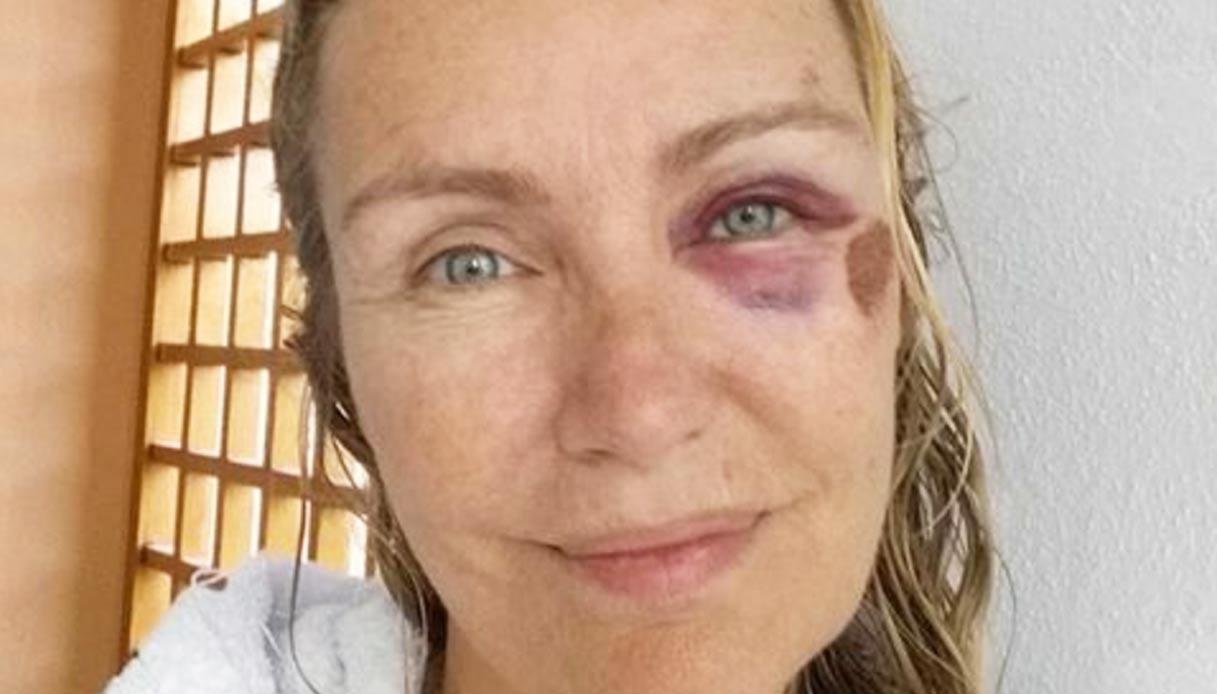 Licia Colò cade dallo skateboard e pubblica la foto su Facebook