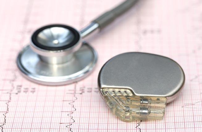 Pacemaker e stetoscopio