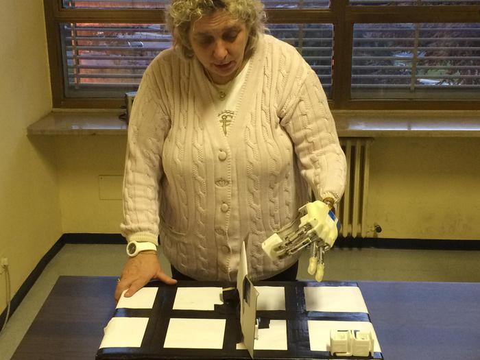 Mano bionica impiantata in una donna italiana