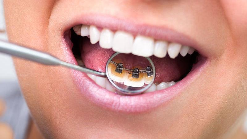 apparecchio per denti invisibile
