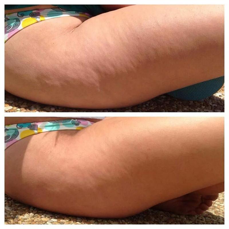 Contro gambe gonfie e cellulite, un facile rimedio fai da te