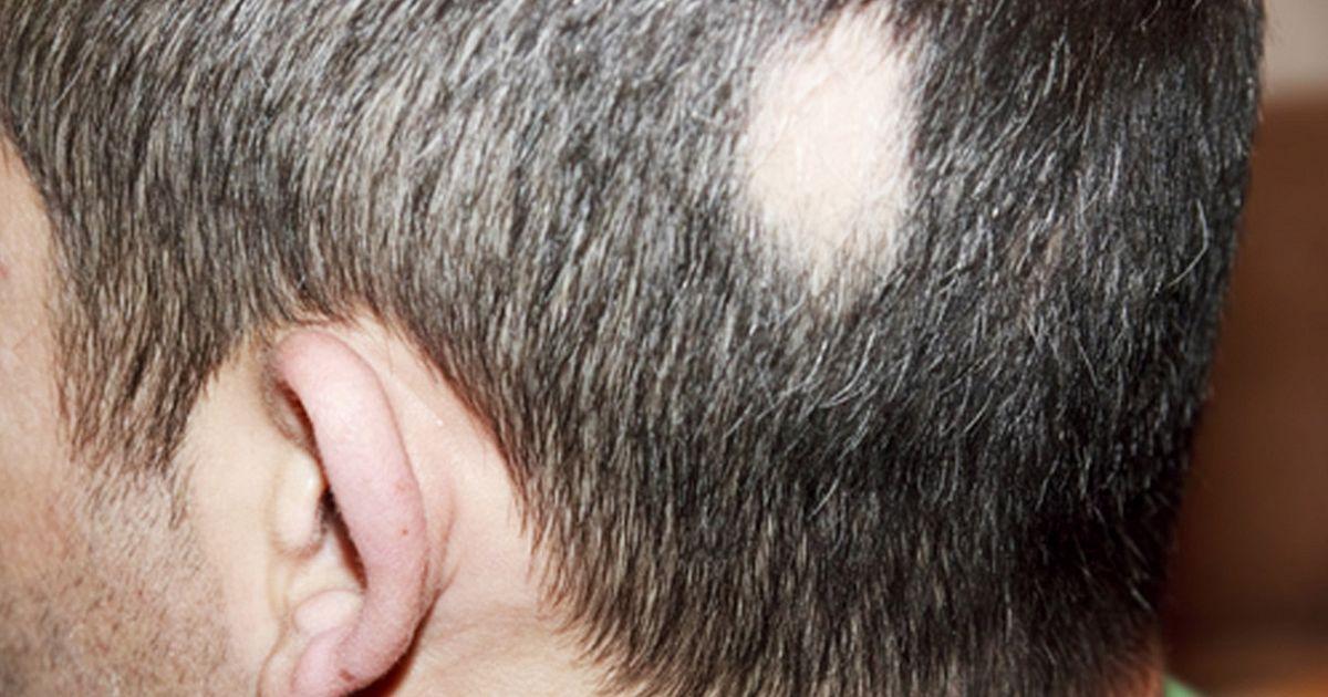 Это изображение имеет пустой атрибут alt; его имя файла - alopecia.jpg