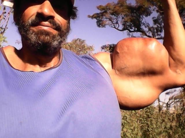Culturista estremo, si inietta olio per gonfiare i muscoli, ecco come è diventato
