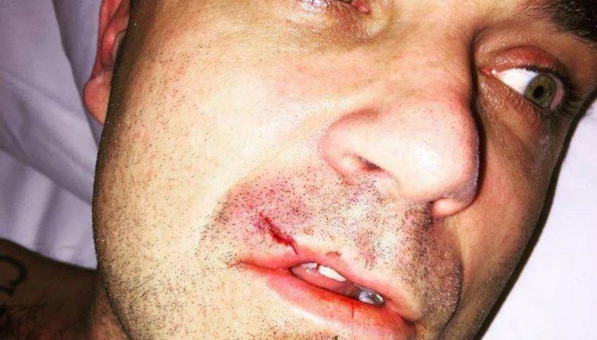 """Robbie Williams ferito dopo aver """"combattuto"""" con il suo computer"""