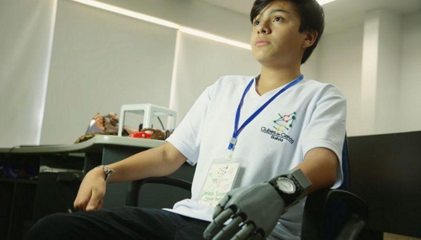 14enne progetta da solo la protesi per la sua mano