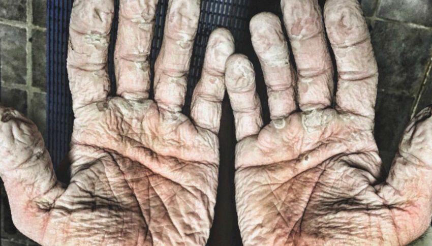 Gli incredibili segni del gelo sulle mani del canottiere olimpico