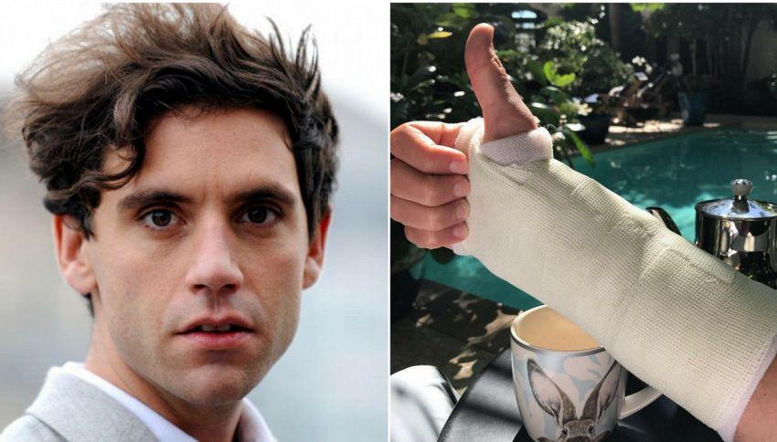 Infortunio per Mika: su Instagram la foto del braccio fasciato